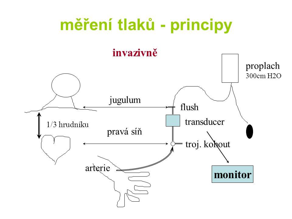 měření tlaků - principy invazivně jugulum flush transducer troj.