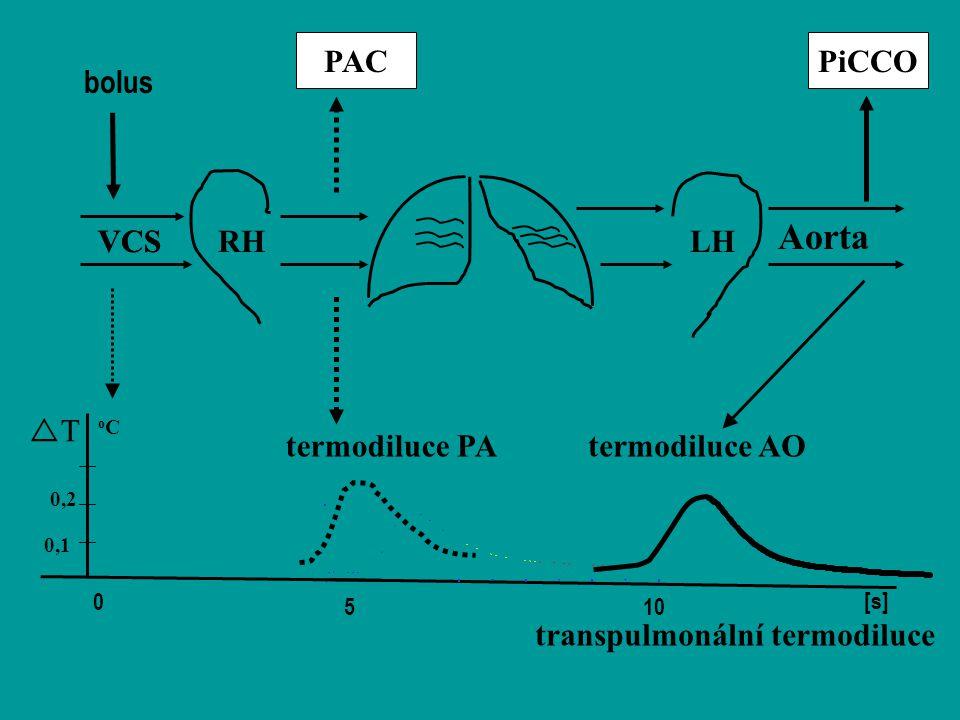 bolus 0 [s] Aorta PiCCO termodiluce AOtermodiluce PA PAC TT 0,1 0,2 RHLHVCS oCoC 510 transpulmonální termodiluce