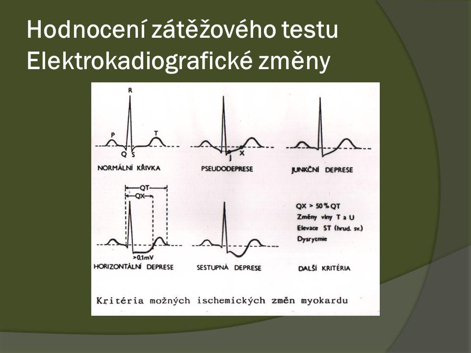 Hodnocení zátěžového testu Elektrokadiografické změny
