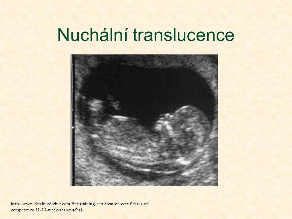 Nuchální translucence http://www.fetalmedicine.com/fmf/training-certification/certificates-of- competence/11-13-week-scan/nuchal/