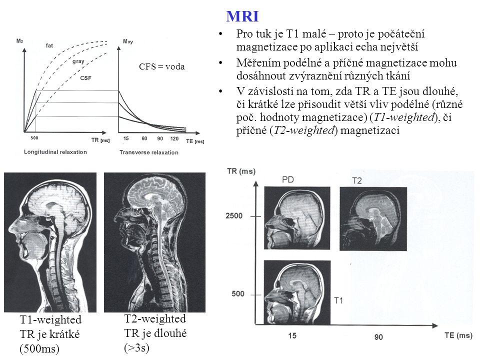 MRI Pro tuk je T1 malé – proto je počáteční magnetizace po aplikaci echa největší Měřením podélné a příčné magnetizace mohu dosáhnout zvýraznění různý