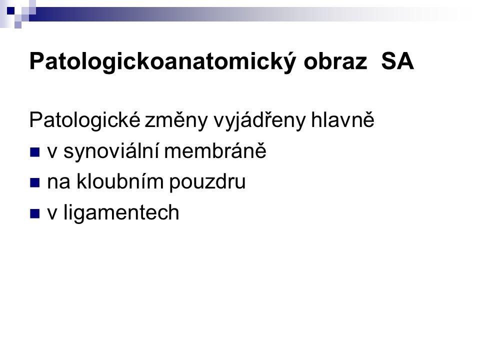 Patologickoanatomický obraz SA Patologické změny vyjádřeny hlavně v synoviální membráně na kloubním pouzdru v ligamentech