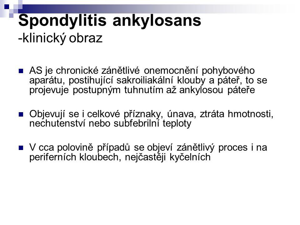Spondylitis ankylosans -klinický obraz AS je chronické zánětlivé onemocnění pohybového aparátu, postihující sakroiliakální klouby a páteř, to se projevuje postupným tuhnutím až ankylosou páteře Objevují se i celkové příznaky, únava, ztráta hmotnosti, nechutenství nebo subfebrilní teploty V cca polovině případů se objeví zánětlivý proces i na periferních kloubech, nejčastěji kyčelních