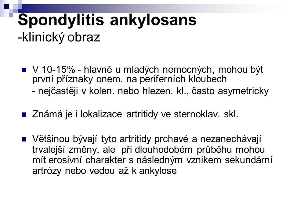 Spondylitis ankylosans -klinický obraz V 10-15% - hlavně u mladých nemocných, mohou být první příznaky onem. na periferních kloubech - nejčastěji v ko