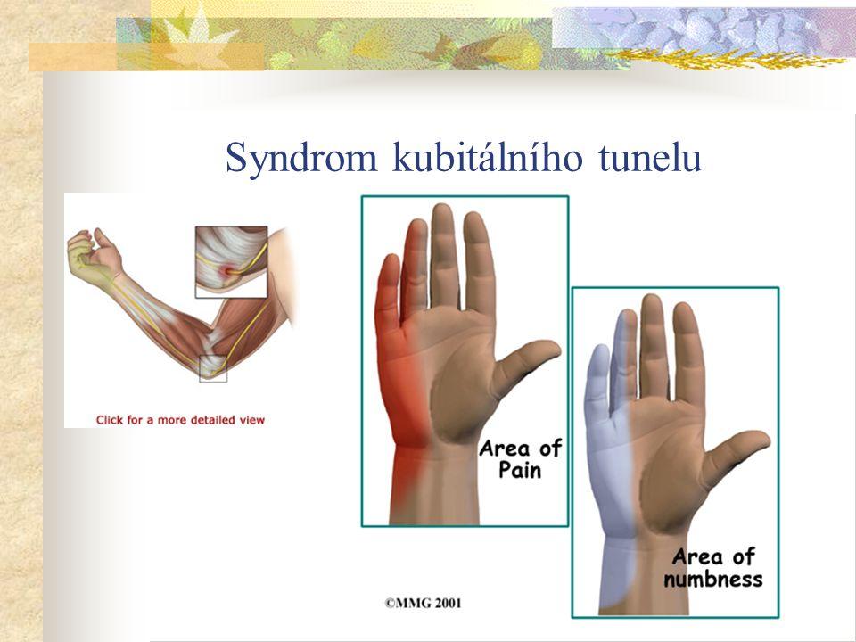 Syndrom kubitálního tunelu