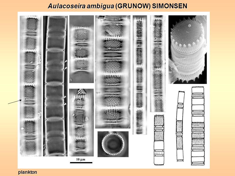 Aulacoseira ambigua (GRUNOW) SIMONSEN plankton