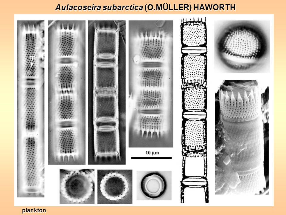 Aulacoseira subarctica (O.MÜLLER) HAWORTH plankton