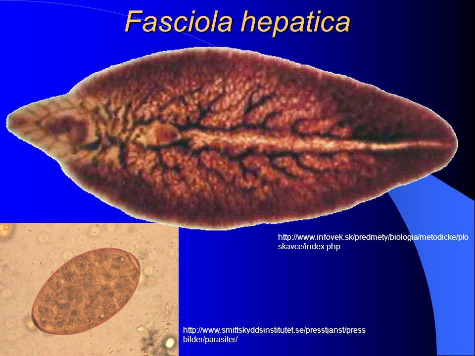 Motolice plicní a jaterní Do této skupiny patří Clonorchis sinensis, která způsobuje bolesti břicha, průjmy a popř. žloutenku. Člověk se nakazí konzum