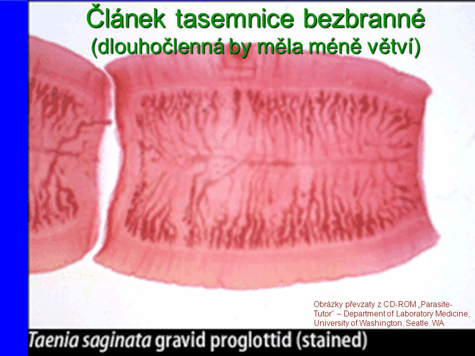 Vajíčka tasemnic Pozor, na základě vajíček nelze rozlišit T. solium od T. saginata, k tomu jsou nutné články! www.medmicro.info
