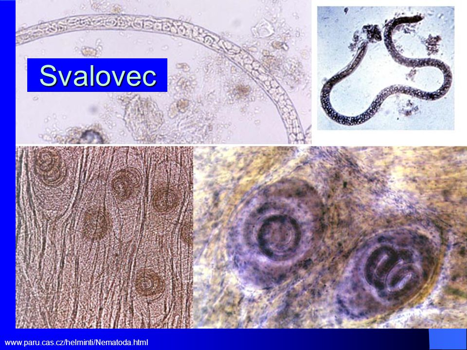 Svalovec stočený Trichinella spiralis http://www.med- chem.com/Para/prob%20of %20month/Prob%20of%20 Month%2012%20Decembe r.htm