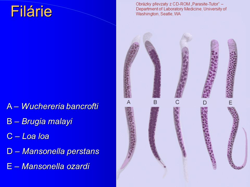 Filárie Jde o hlístice Wuchereria bancrofti, Brugia malayi, Brugia timori, Onchocerca volvulus, Loaloa medinensis a Mansonella sp. Jde o hlístice Wuch