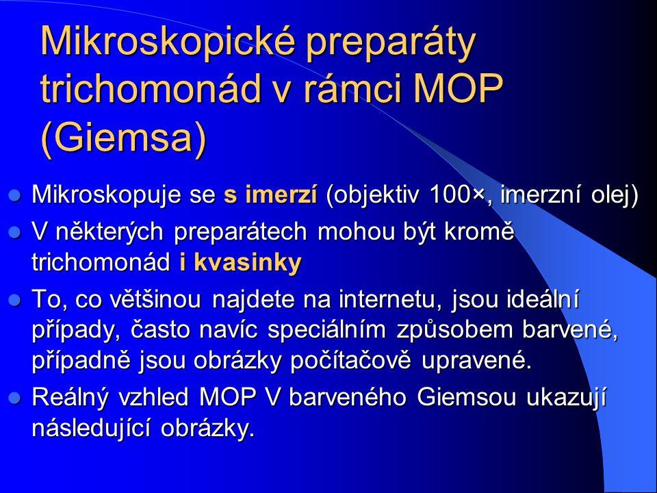 Diagnostika trichomonád Trichomonády se v poslední době diagnostikují zejména kultivačně-mikroskopickým vyšetřením: Trichomonády se v poslední době di