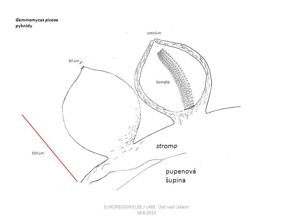 Gemmamyces piceae pyknidy stroma pupenová šupina konidie ostiolum 500 μm 60 μm EUROREGION ELBE / LABE Ústí nad Labem 18.6.2015