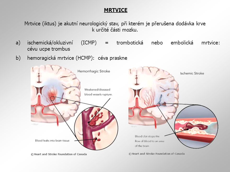 Mrtvice (iktus) je akutní neurologický stav, při kterém je přerušena dodávka krve k určité části mozku. MRTVICE a)ischemická/okluzivní (ICMP) = trombo