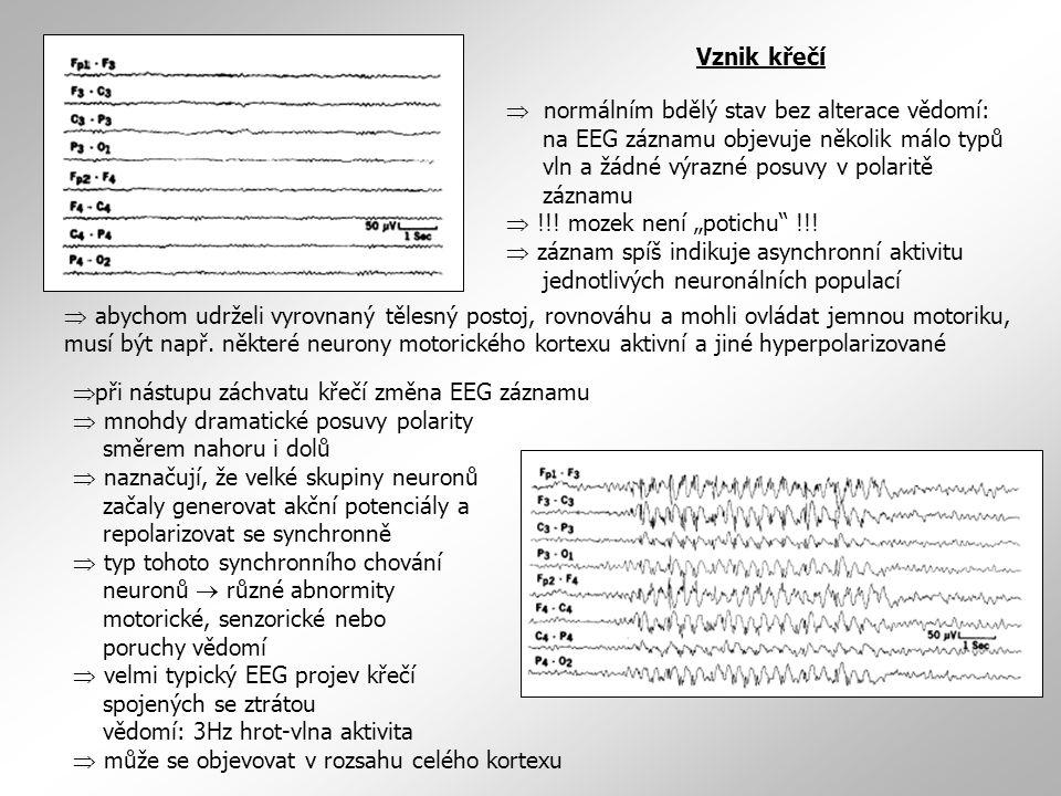 Vznik křečí  normálním bdělý stav bez alterace vědomí: na EEG záznamu objevuje několik málo typů vln a žádné výrazné posuvy v polaritě záznamu  !!!