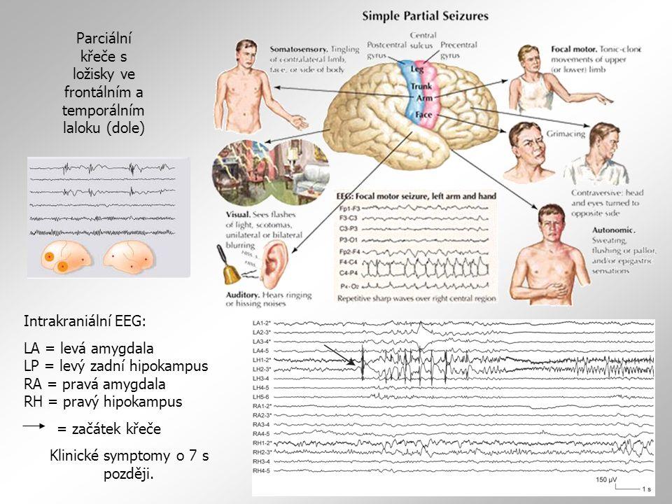 Intrakraniální EEG: LA = levá amygdala LP = levý zadní hipokampus RA = pravá amygdala RH = pravý hipokampus = začátek křeče Klinické symptomy o 7 s po