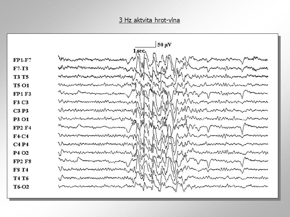 3 Hz aktvita hrot-vlna