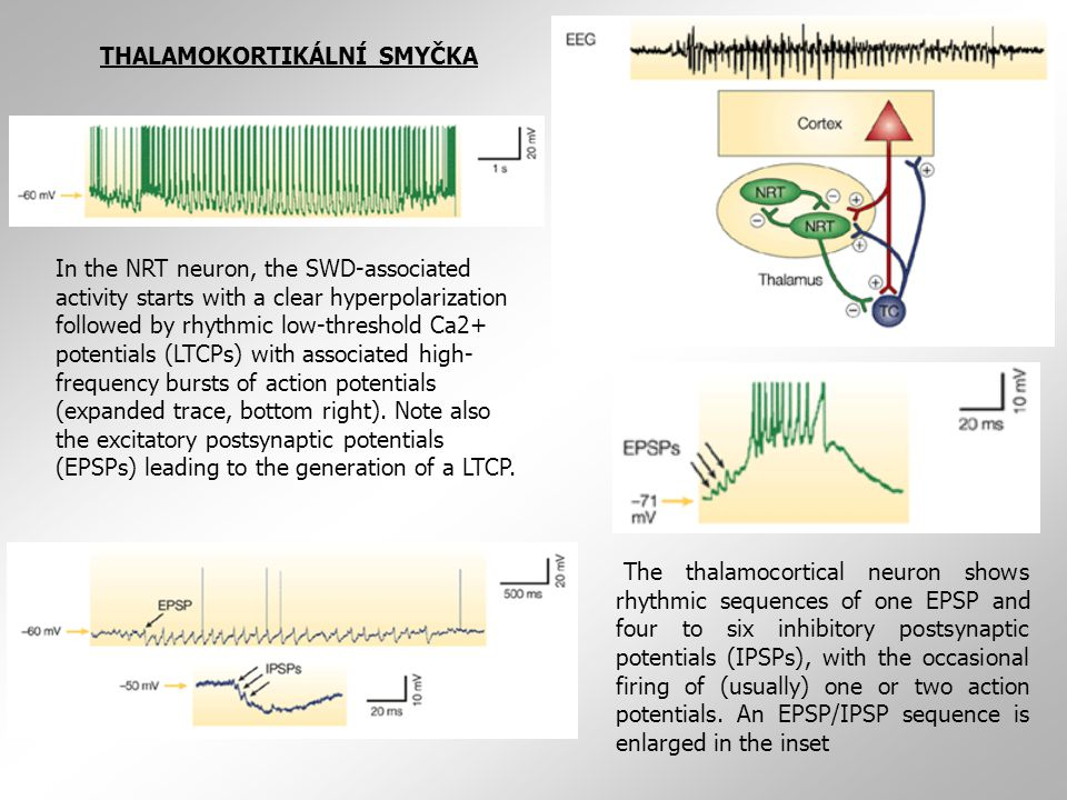 The thalamocortical neuron shows rhythmic sequences of one EPSP and four to six inhibitory postsynaptic potentials (IPSPs), with the occasional firing of (usually) one or two action potentials.