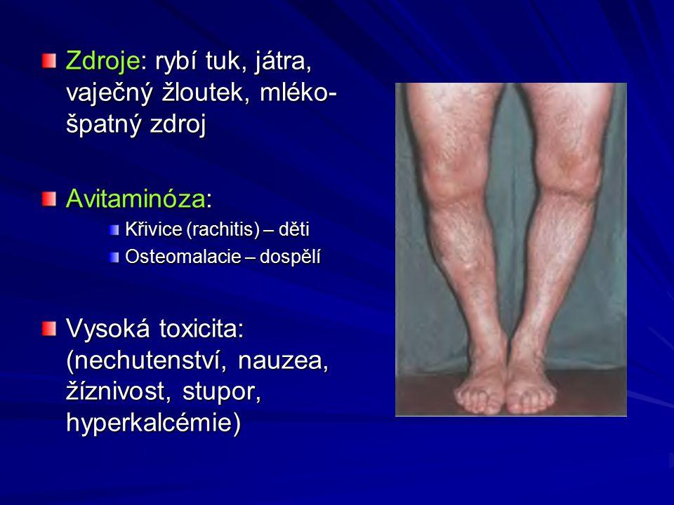 Zdroje: rybí tuk, játra, vaječný žloutek, mléko- špatný zdroj Avitaminóza: Křivice (rachitis) – děti Osteomalacie – dospělí Vysoká toxicita: (nechutenství, nauzea, žíznivost, stupor, hyperkalcémie)