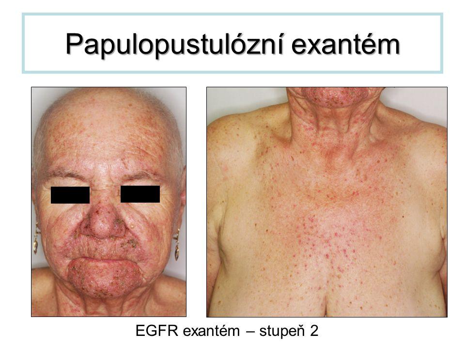 Papulopustulózní exantém EGFR exantém – stupeň 2
