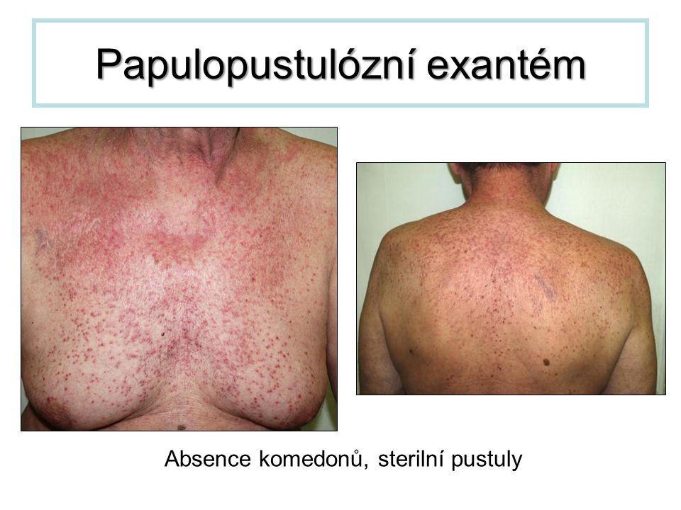 Papulopustulózní exantém Absence komedonů, sterilní pustuly