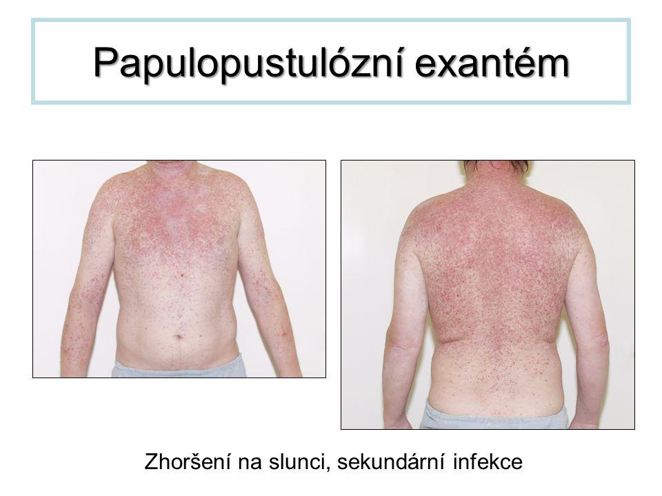 Papulopustulózní exantém Zhoršení na slunci, sekundární infekce