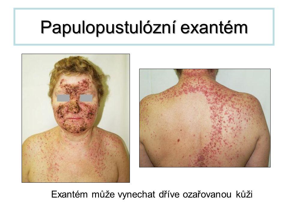 Papulopustulózní exantém Exantém může vynechat dříve ozařovanou kůži