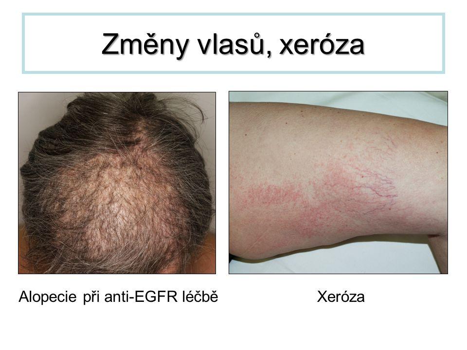 Změny vlasů, xeróza Alopecie při anti-EGFR léčběXeróza