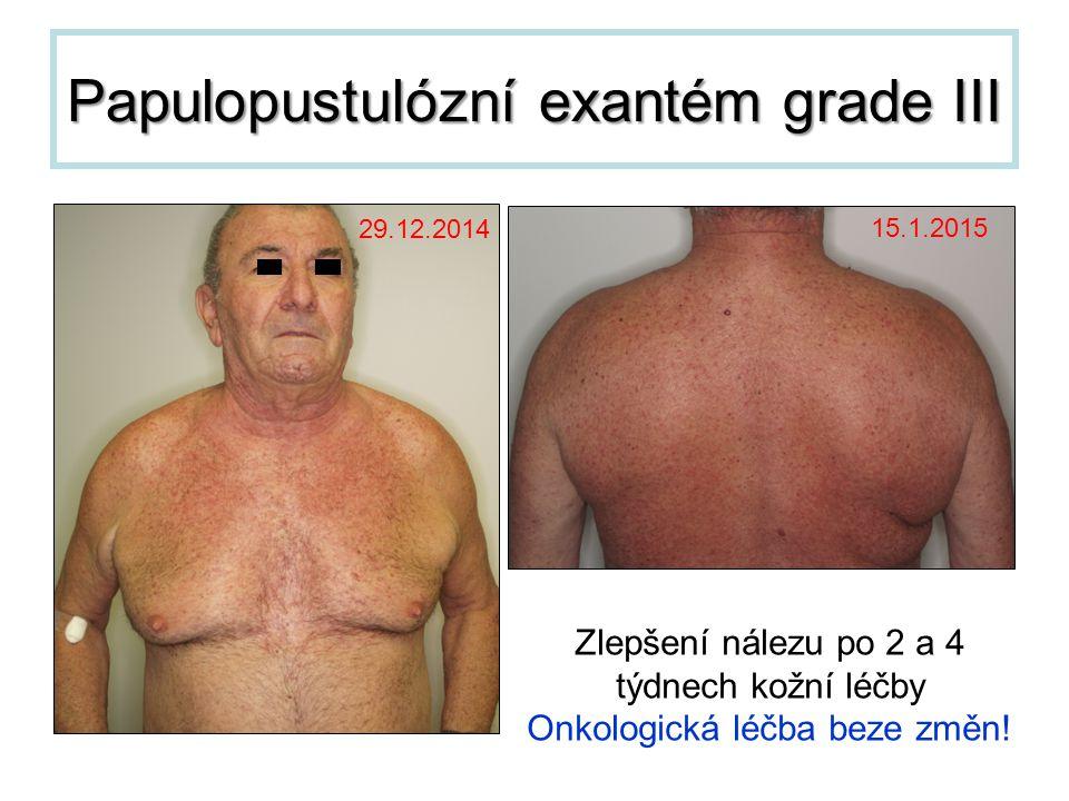 Papulopustulózní exantém grade III Zlepšení nálezu po 2 a 4 týdnech kožní léčby Onkologická léčba beze změn! 29.12.2014 15.1.2015