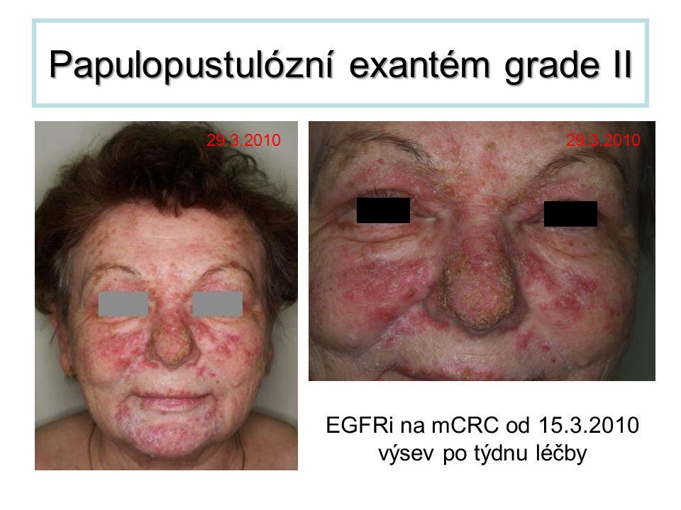 Papulopustulózní exantém grade II 29.3.2010 EGFRi na mCRC od 15.3.2010 výsev po týdnu léčby