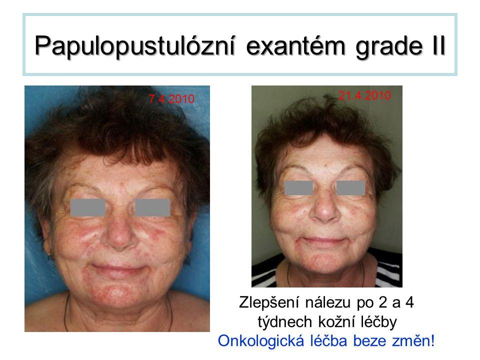 Papulopustulózní exantém grade II 7.4.2010 21.4.2010 Zlepšení nálezu po 2 a 4 týdnech kožní léčby Onkologická léčba beze změn!