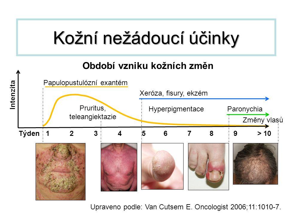 Kožní nežádoucí účinky Upraveno podle: Van Cutsem E. Oncologist 2006;11:1010-7. Týden 1 2 3 4 5 6 7 8 9 > 10 Paronychia Xeróza, fisury, ekzém Papulopu
