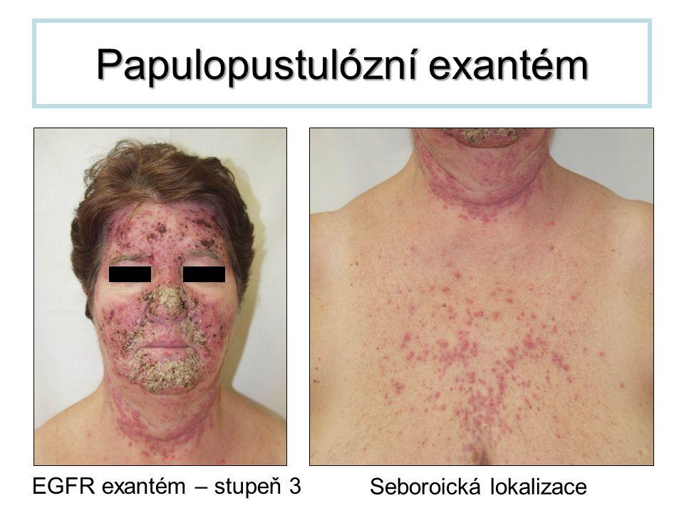 Papulopustulózní exantém EGFR exantém – stupeň 3 Seboroická lokalizace