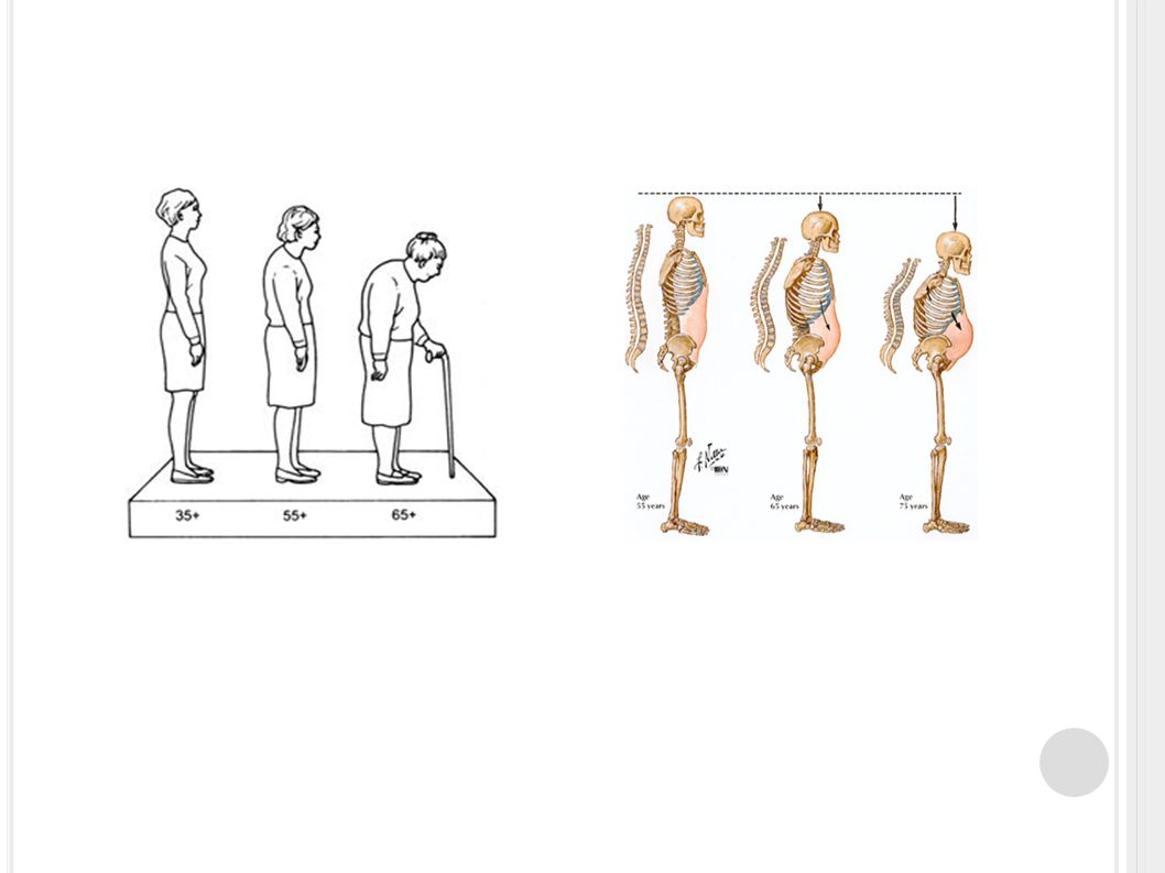 P OZN.: V ÁPNÍK - FUNKCE 99% v kostech Cytoskelet Svalová kontrakce Nervový přenos Aktivace enzymů Krevní srážlivost aj.