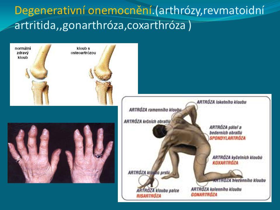 Degenerativní onemocnění.(arthrózy,revmatoidní artritida,,gonarthróza,coxarthróza )