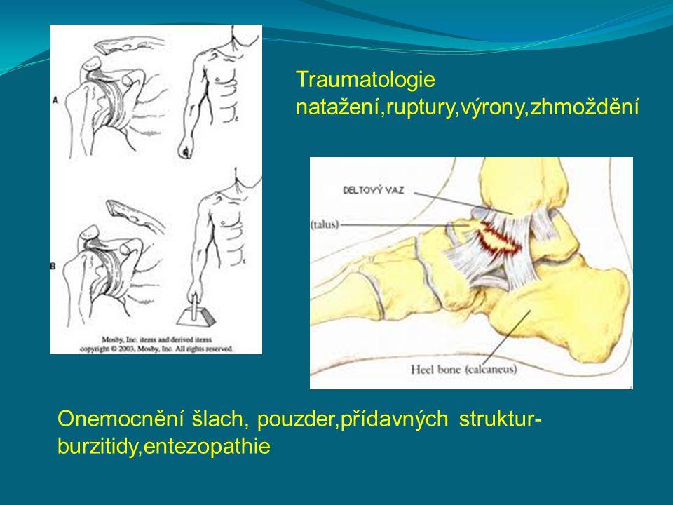 Traumatologie natažení,ruptury,výrony,zhmoždění Onemocnění šlach, pouzder,přídavných struktur- burzitidy,entezopathie