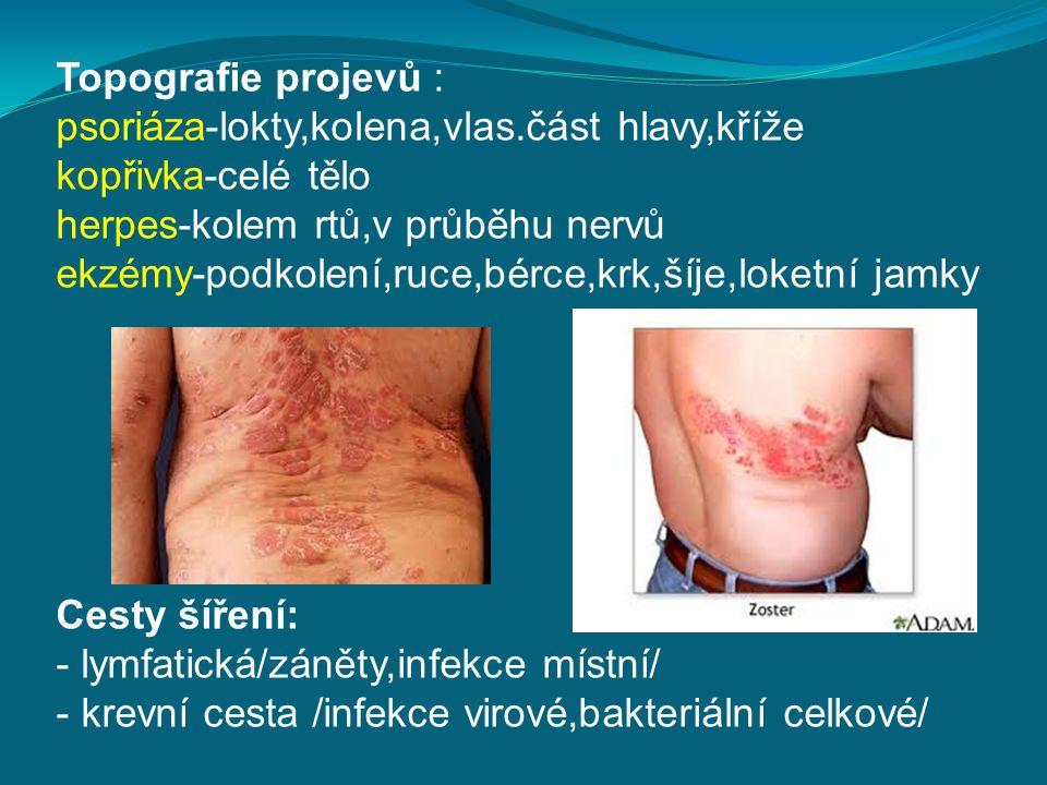 Topografie projevů : psoriáza-lokty,kolena,vlas.část hlavy,kříže kopřivka-celé tělo herpes-kolem rtů,v průběhu nervů ekzémy-podkolení,ruce,bérce,krk,š