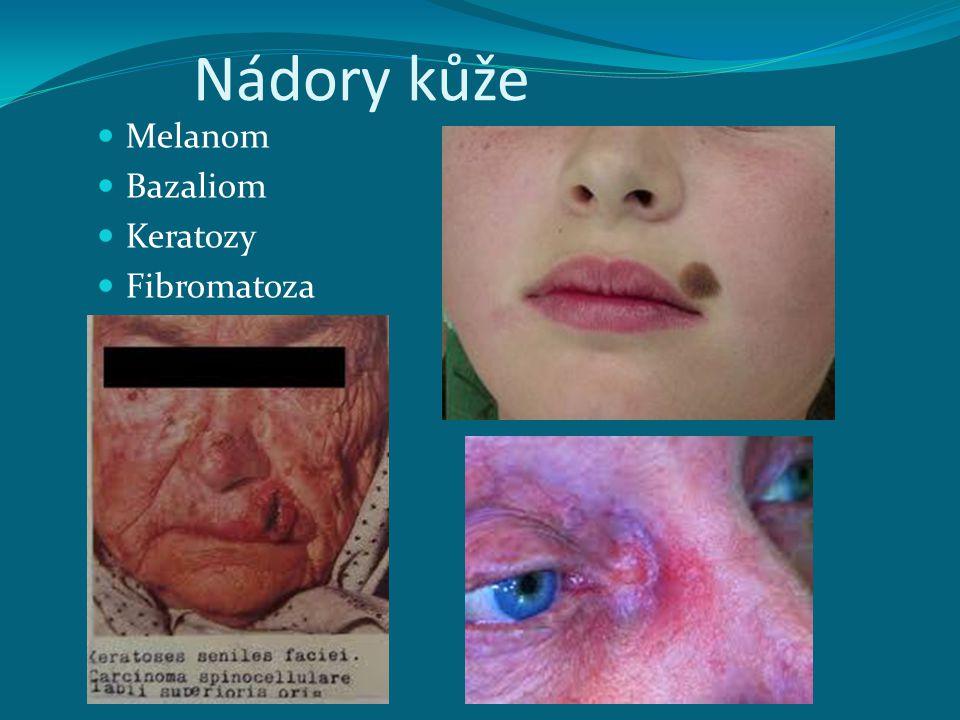 Nádory kůže Melanom Bazaliom Keratozy Fibromatoza