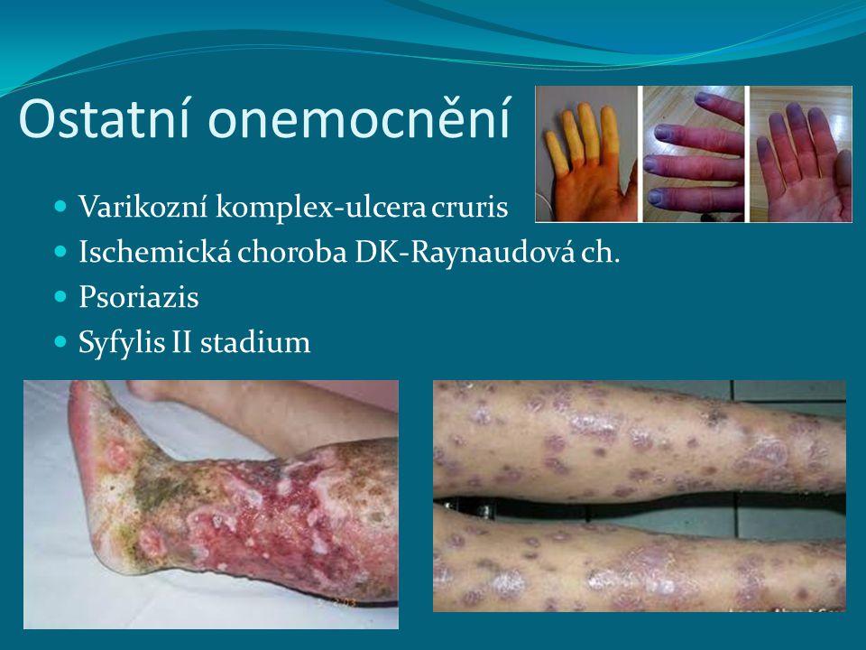 Ostatní onemocnění Varikozní komplex-ulcera cruris Ischemická choroba DK-Raynaudová ch. Psoriazis Syfylis II stadium