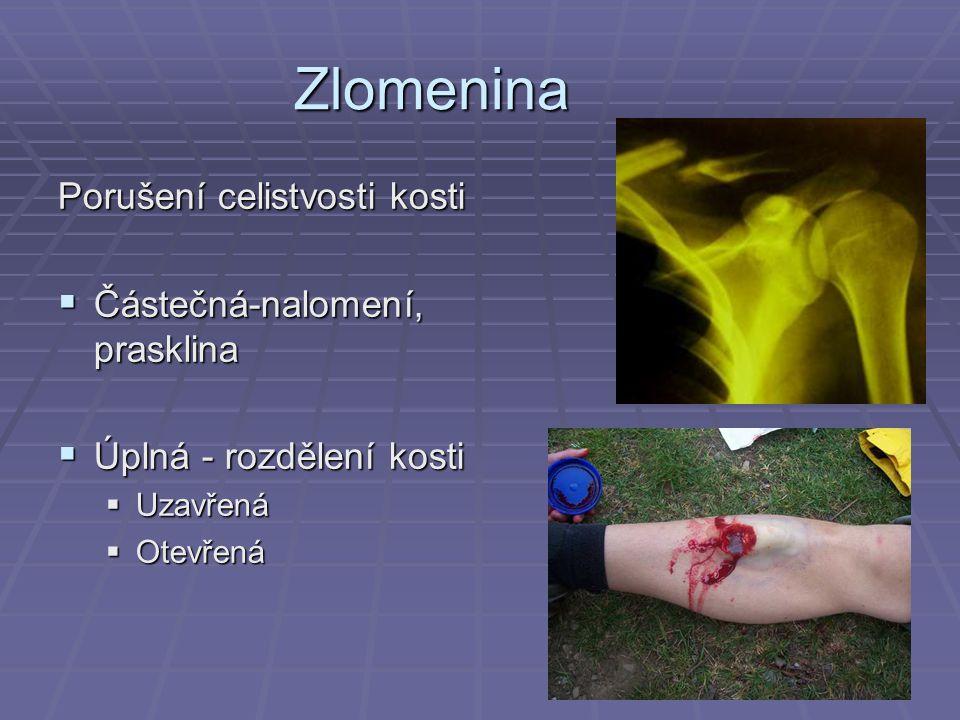 Zlomenina Porušení celistvosti kosti  Částečná-nalomení, prasklina  Úplná - rozdělení kosti  Uzavřená  Otevřená