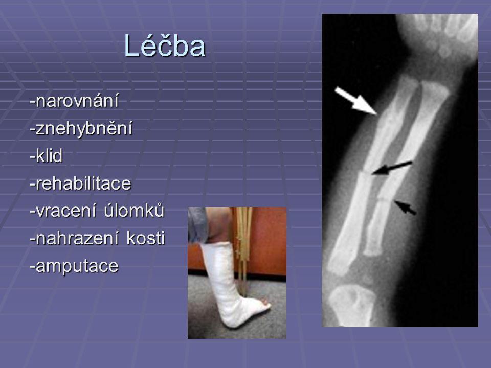 Léčba -narovnání-znehybnění-klid-rehabilitace -vracení úlomků -nahrazení kosti -amputace