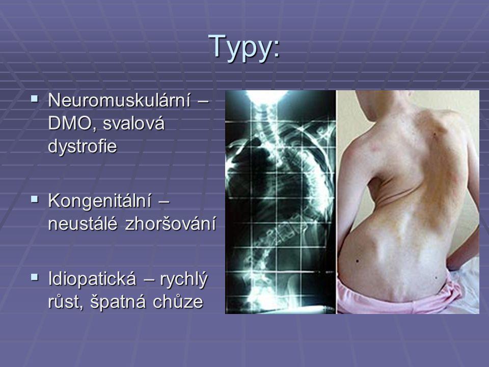Typy:  Neuromuskulární – DMO, svalová dystrofie  Kongenitální – neustálé zhoršování  Idiopatická – rychlý růst, špatná chůze