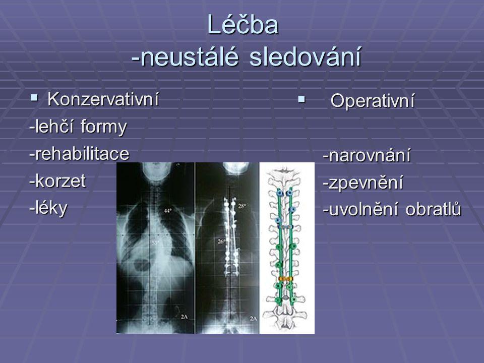 Léčba -neustálé sledování  Konzervativní -lehčí formy -rehabilitace-korzet-léky  Operativní -narovnání -narovnání -zpevnění -zpevnění -uvolnění obra