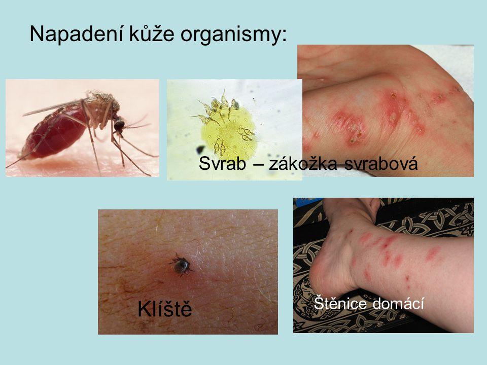 Napadení kůže organismy: Klíště Svrab – zákožka svrabová Štěnice domácí