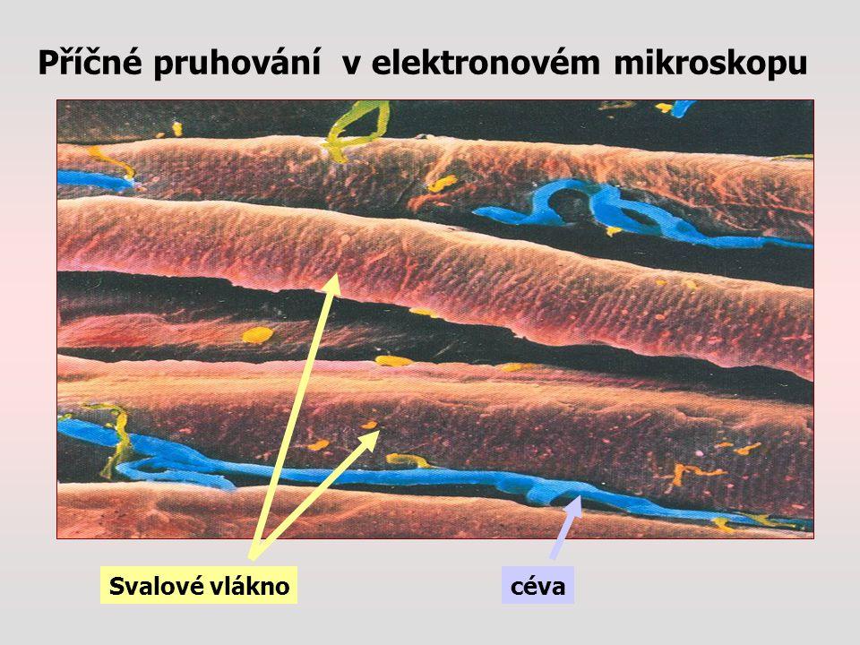 Příčné pruhování v elektronovém mikroskopu Svalové vláknocéva