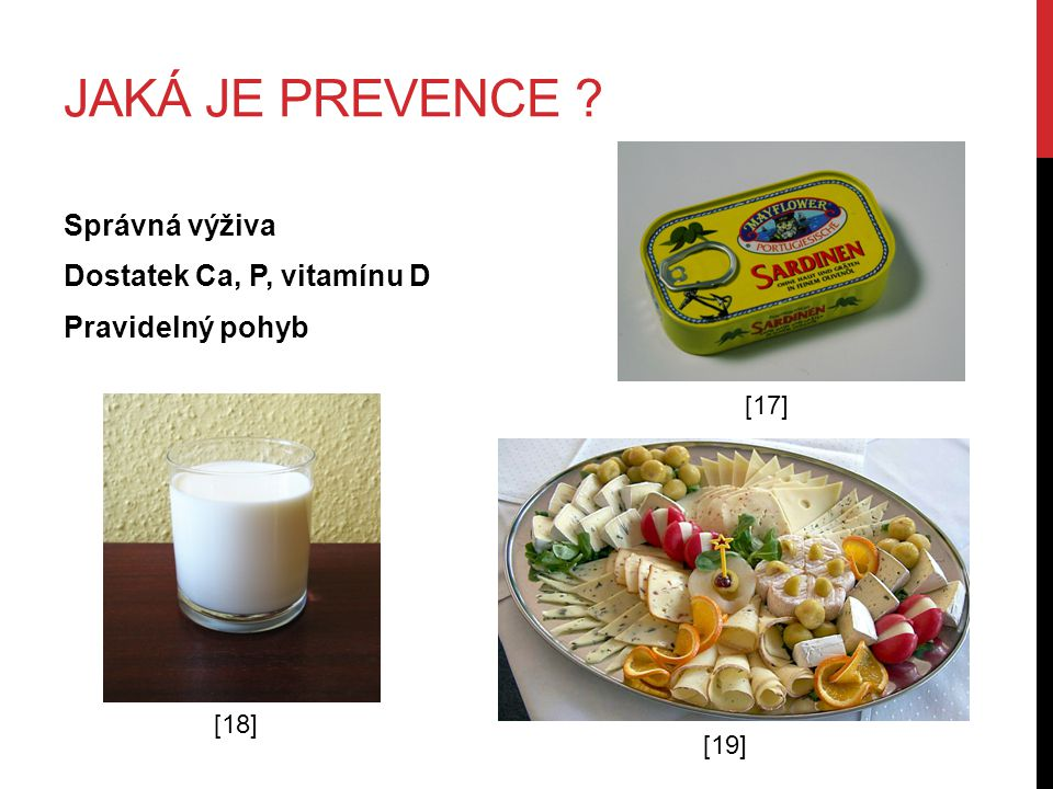 JAKÁ JE PREVENCE ? Správná výživa Dostatek Ca, P, vitamínu D Pravidelný pohyb [17] [18] [19]