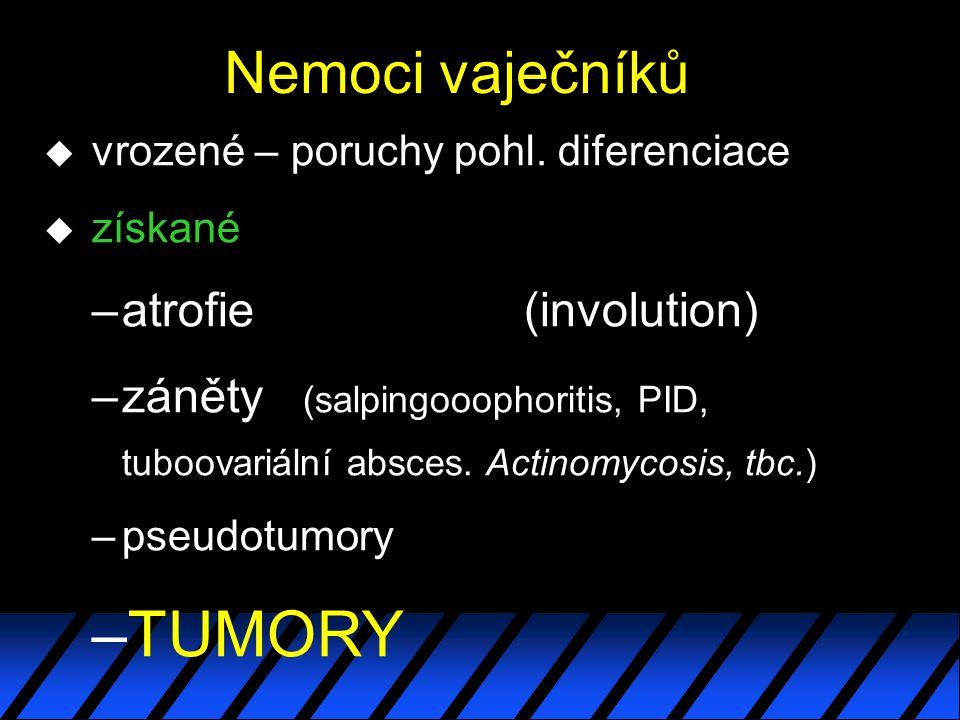 Nemoci vaječníků u vrozené – poruchy pohl. diferenciace u získané –atrofie(involution) –záněty (salpingooophoritis, PID, tuboovariální absces. Actinom