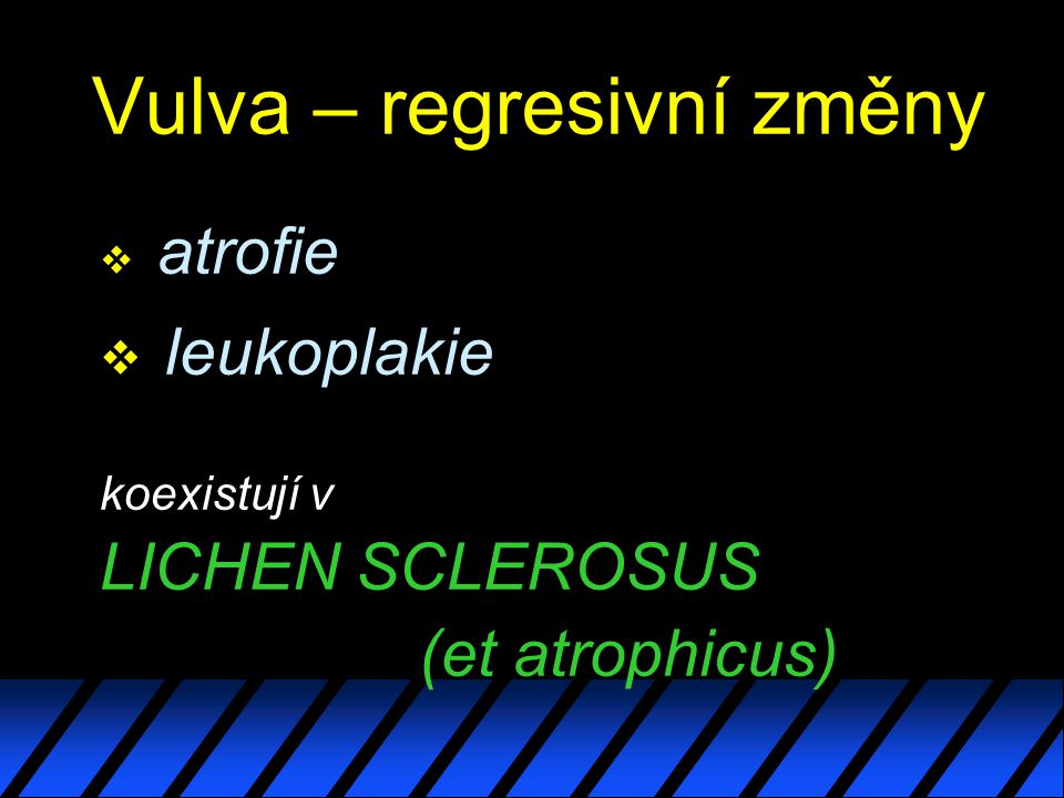 Vulva – regresivní změny v atrofie v leukoplakie koexistují v LICHEN SCLEROSUS (et atrophicus)