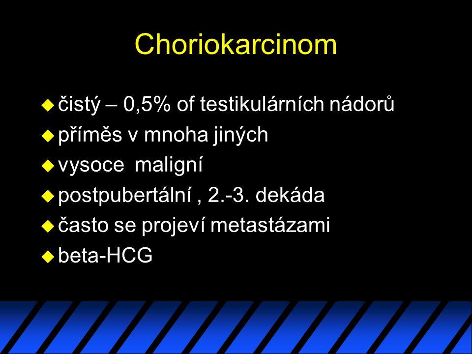 Choriokarcinom u čistý – 0,5% of testikulárních nádorů u příměs v mnoha jiných u vysoce maligní u postpubertální, 2.-3. dekáda u často se projeví meta