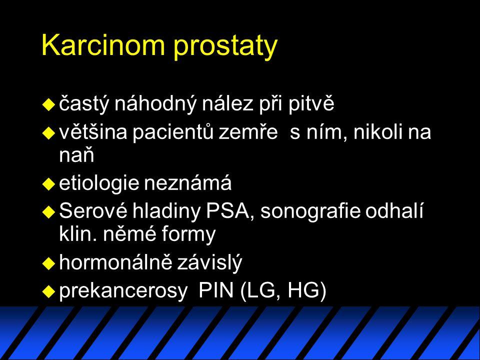 Karcinom prostaty u častý náhodný nález při pitvě u většina pacientů zemře s ním, nikoli na naň u etiologie neznámá u Serové hladiny PSA, sonografie o